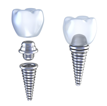 Dental implant diagram from Oral Surgery Specialists of Austin.