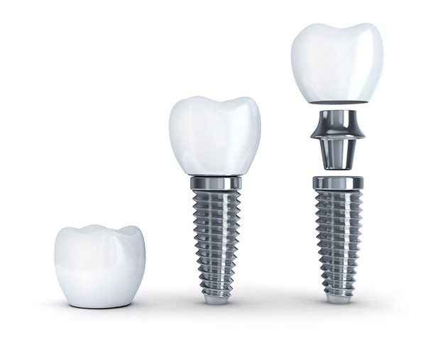 Diagram of dental implant with post